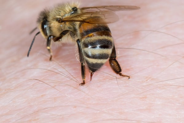 Honey Bee Stinging A Person